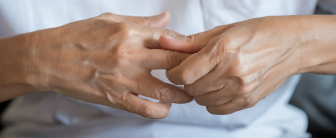 A woman's hands with joint pain